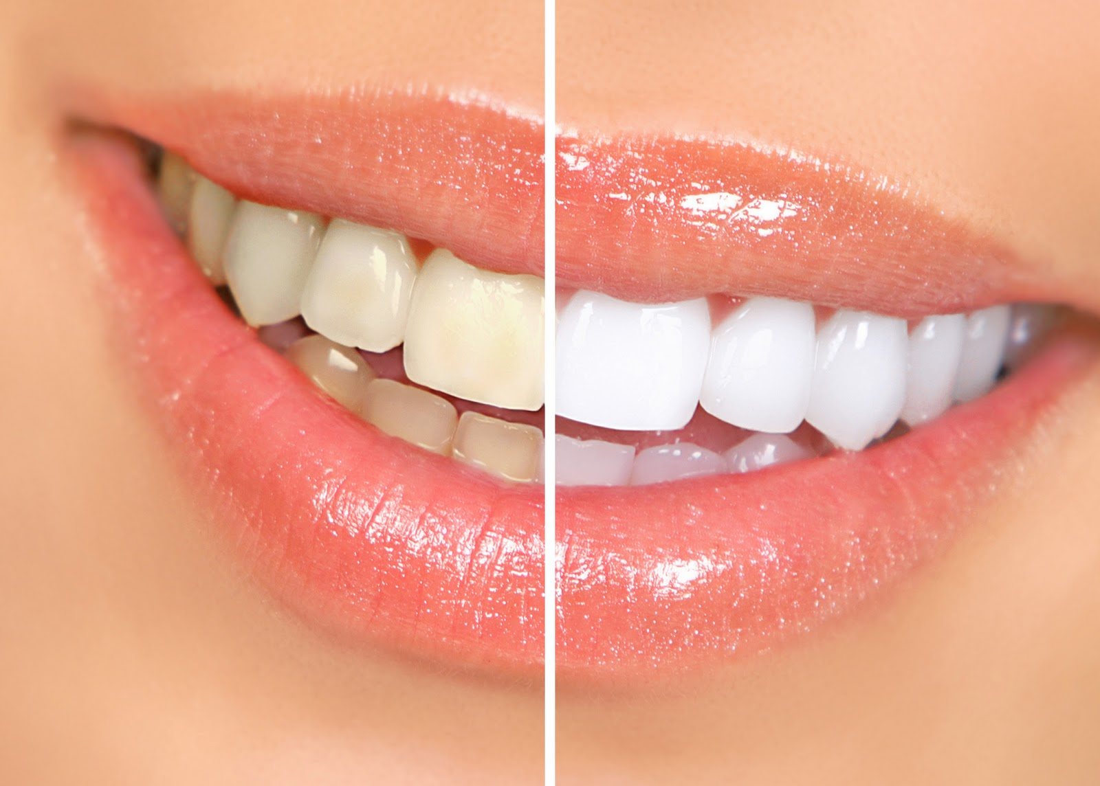 Blanqueamiento-dental_0001